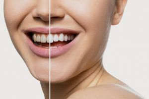 Blanqueamiento dental IVADE
